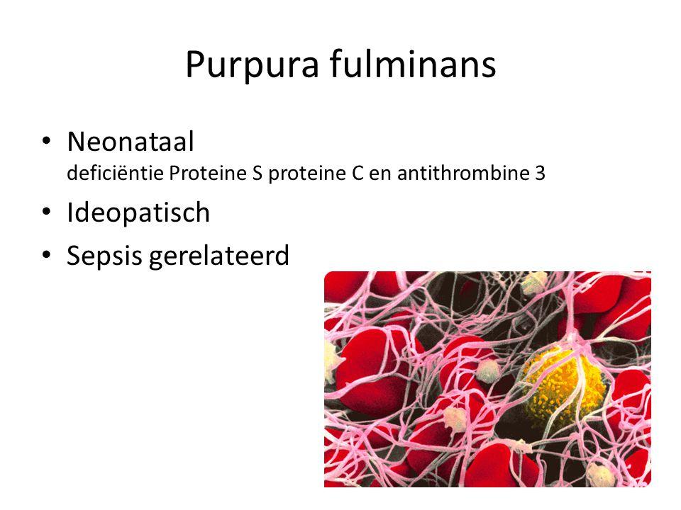 Purpura fulminans Neonataal deficiëntie Proteine S proteine C en antithrombine 3 Ideopatisch Sepsis gerelateerd