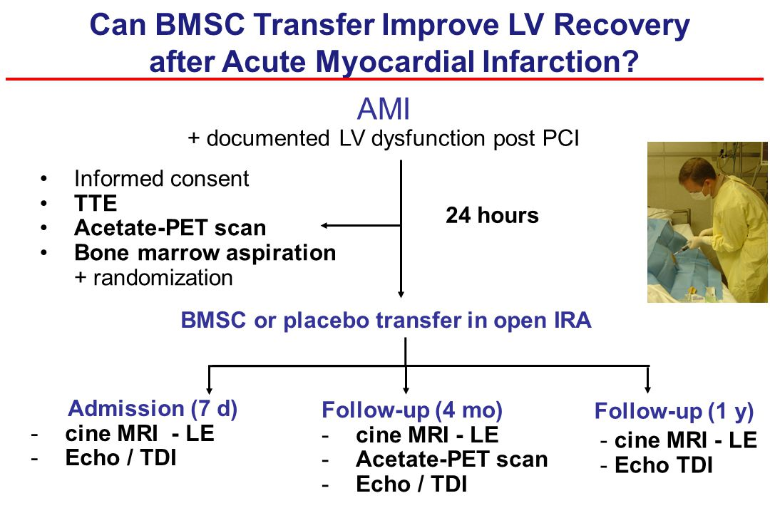 AMI + documented LV dysfunction post PCI Can BMSC Transfer Improve LV Recovery after Acute Myocardial Infarction? BMSC or placebo transfer in open IRA
