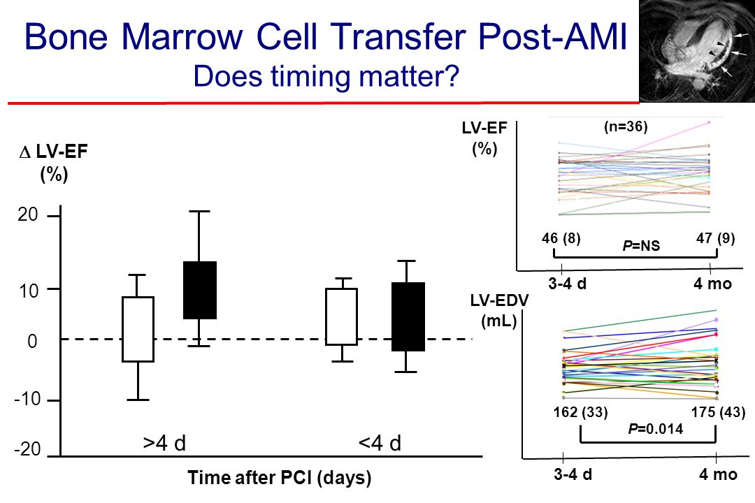 Bone Marrow Cell Transfer Post-AMI Does timing matter? 20 -20 10 -10 0  LV-EF (%) Time after PCI (days) 46 (8)47 (9) (n=36) LV-EF (%) P=NS 3-4 d4 mo