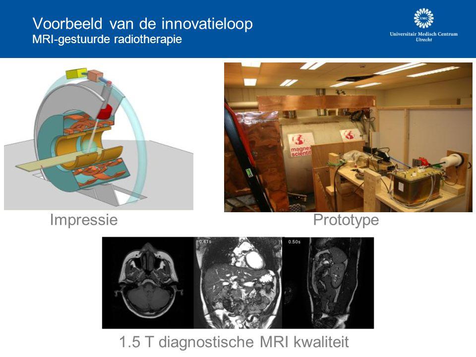 Voorbeeld van de innovatieloop MRI-gestuurde radiotherapie Impressie 1.5 T diagnostische MRI kwaliteit Prototype