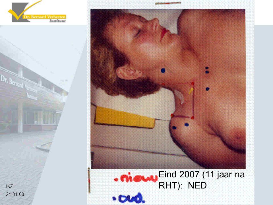 IKZ 24-01-08 Eind 2007 (11 jaar na RHT): NED