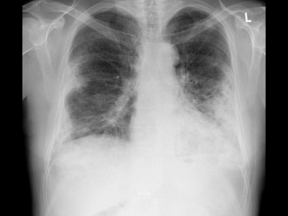 therapie  De meeste BIP wordt gediagnosticeerd op de poli oncologie:  Stop bleomycine.