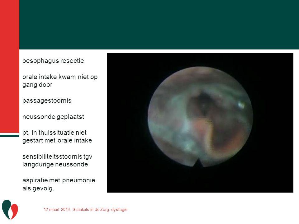 oesophagus resectie orale intake kwam niet op gang door passagestoornis neussonde geplaatst pt. in thuissituatie niet gestart met orale intake sensibi