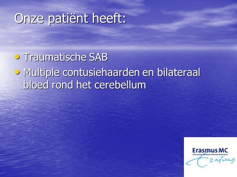 Onze patiënt heeft: Traumatische SAB Traumatische SAB Multiple contusiehaarden en bilateraal bloed rond het cerebellum Multiple contusiehaarden en bil