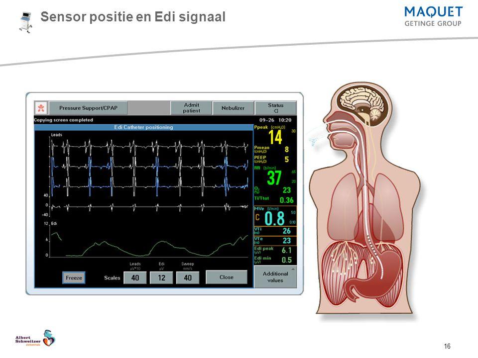 16 Sensor positie en Edi signaal