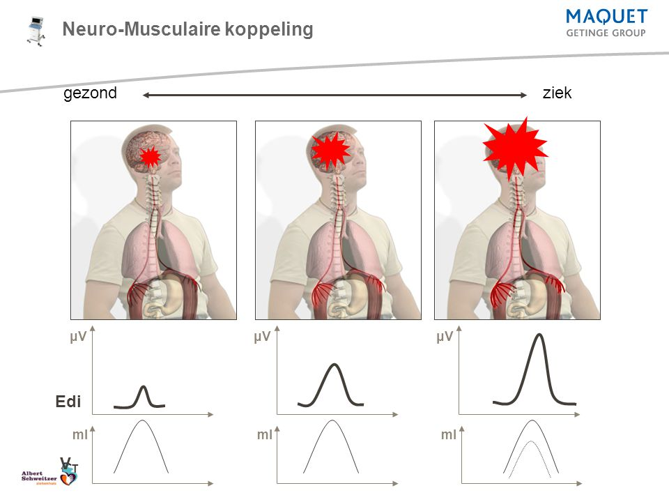 Edi VTVT gezondziek Neuro-Musculaire koppeling μVμVμVμVμVμV ml