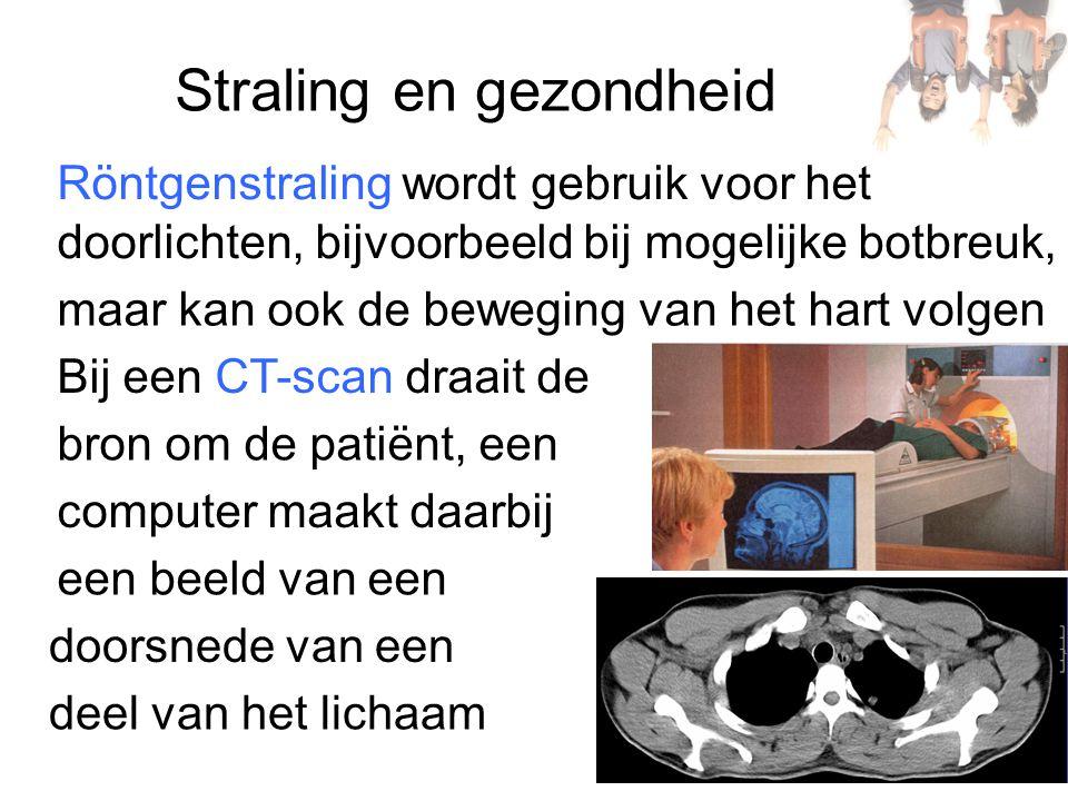 Straling en gezondheid Röntgenstraling wordt gebruik voor het doorlichten, bijvoorbeeld bij mogelijke botbreuk, maar kan ook de beweging van het hart volgen Bij een CT-scan draait de bron om de patiënt, een computer maakt daarbij een beeld van een deel van het lichaam doorsnede van een