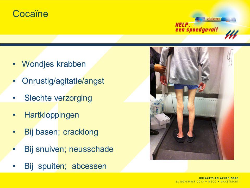 Cocaïne Wondjes krabben Onrustig/agitatie/angst Slechte verzorging Hartkloppingen Bij basen; cracklong Bij snuiven; neusschade Bij spuiten; abcessen