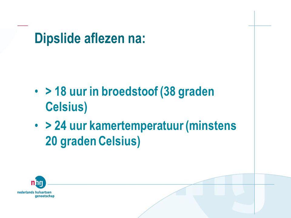 Dipslide aflezen na: > 18 uur in broedstoof (38 graden Celsius) > 24 uur kamertemperatuur (minstens 20 graden Celsius)