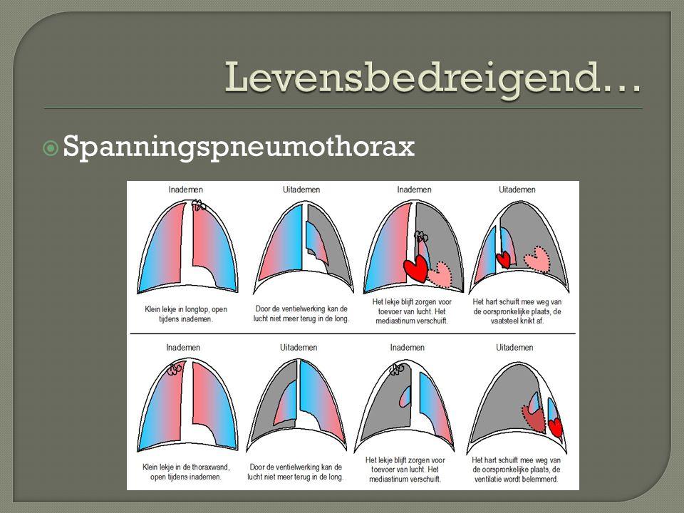  Spanningspneumothorax