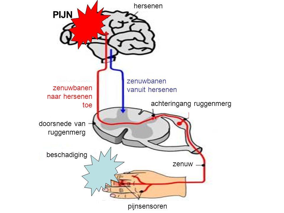 pijnsensoren zenuw beschadiging doorsnede van ruggenmerg achteringang ruggenmerg zenuwbanen naar hersenen toe zenuwbanen vanuit hersenen hersenen PIJN