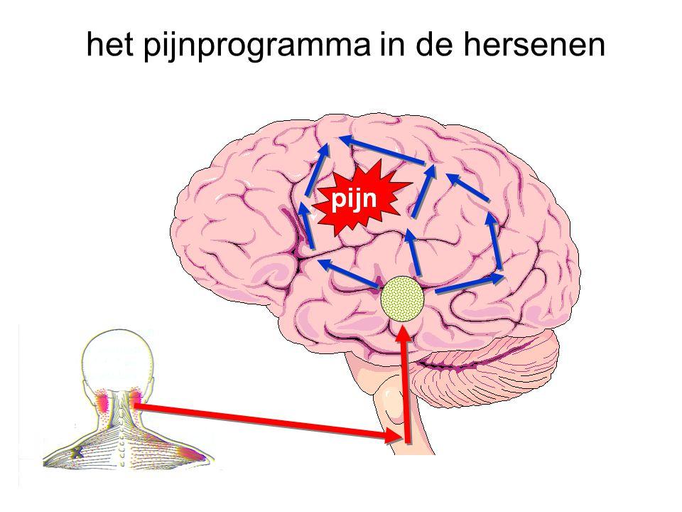 het pijnprogramma in de hersenen