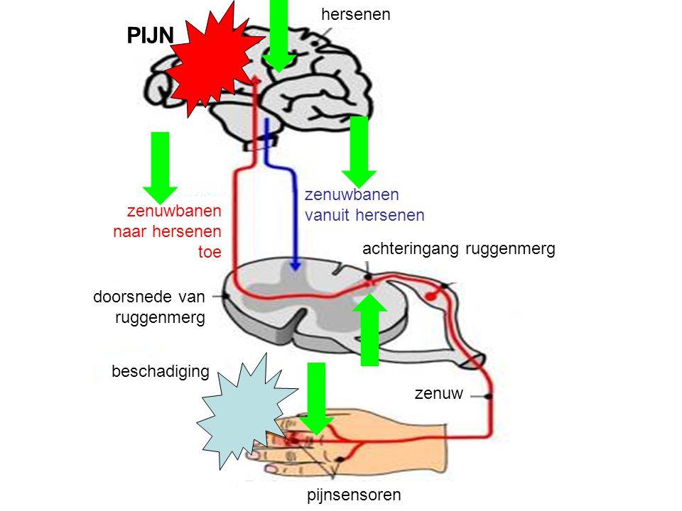 doorsnede van ruggenmerg pijnsensoren zenuw achteringang ruggenmerg beschadiging zenuwbanen naar hersenen toe zenuwbanen vanuit hersenen hersenen PIJN