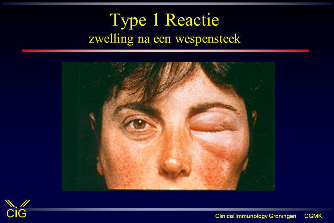 Clinical Immunology GroningenCGMK CiGCiG Type 1 Reactie zwelling na een wespensteek