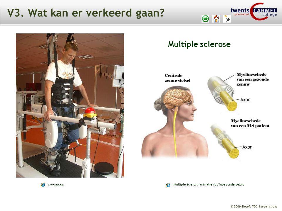 © 2009 Biosoft TCC - Lyceumstraat V3. Wat kan er verkeerd gaan? Dwarslesie Multiple Sclerosis animatie YouTube zondergeluid Multiple sclerose