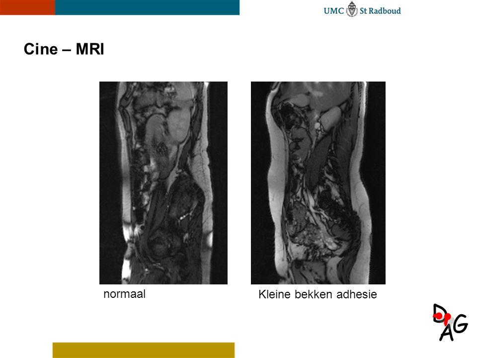 A D G Cine – MRI normaal Kleine bekken adhesie