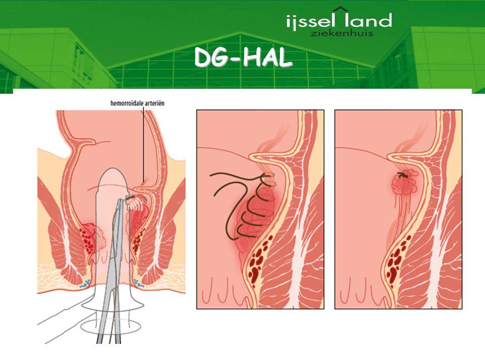 6 DG-HAL