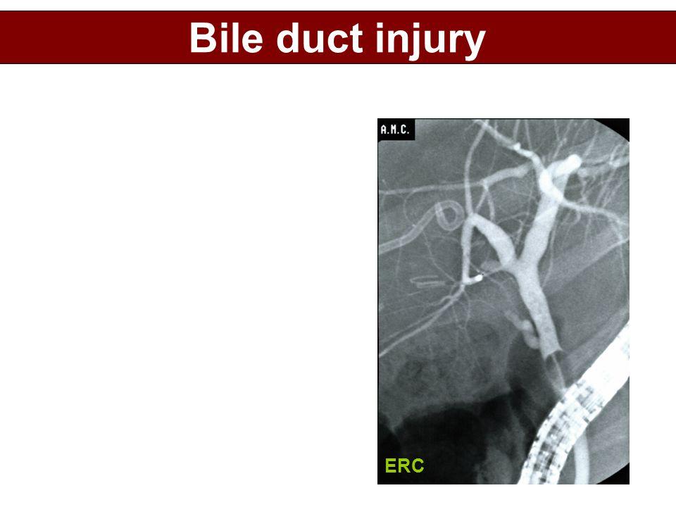 ERC Bile duct injury