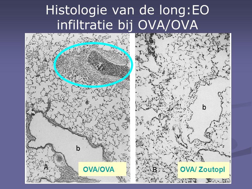 Histologie van de long:EO infiltratie bij OVA/OVA OVA/OVAOVA/ Zoutopl