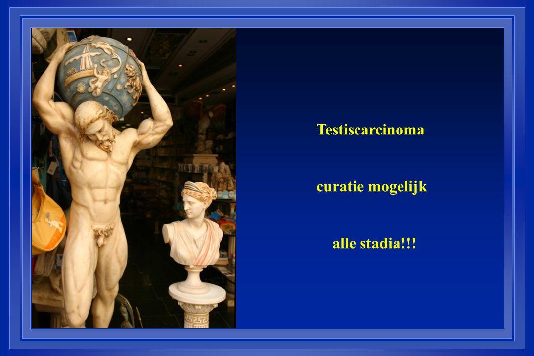 Testiscarcinoma curatie mogelijk alle stadia!!!