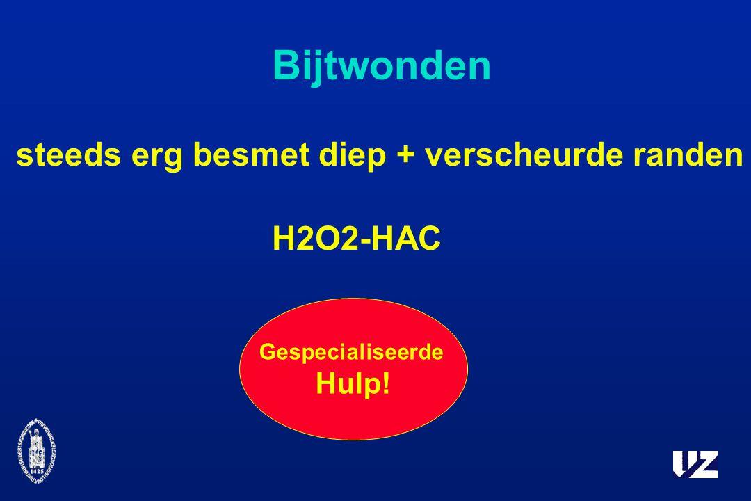 H2O2-HAC Gespecialiseerde Hulp! steeds erg besmet diep + verscheurde randen Bijtwonden