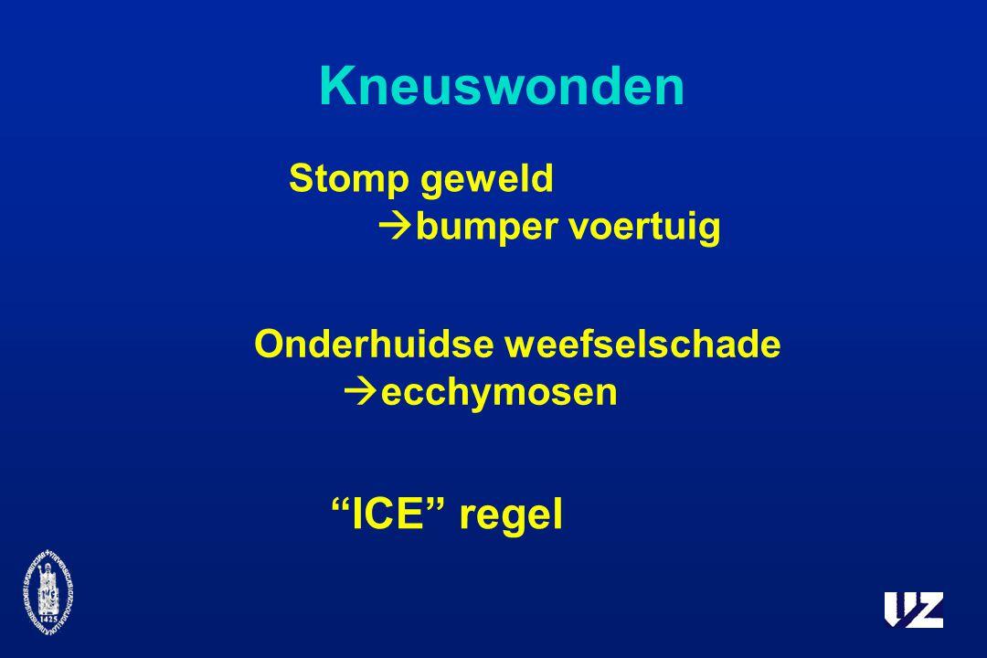 Kneuswonden Stomp geweld  bumper voertuig Onderhuidse weefselschade  ecchymosen ICE regel