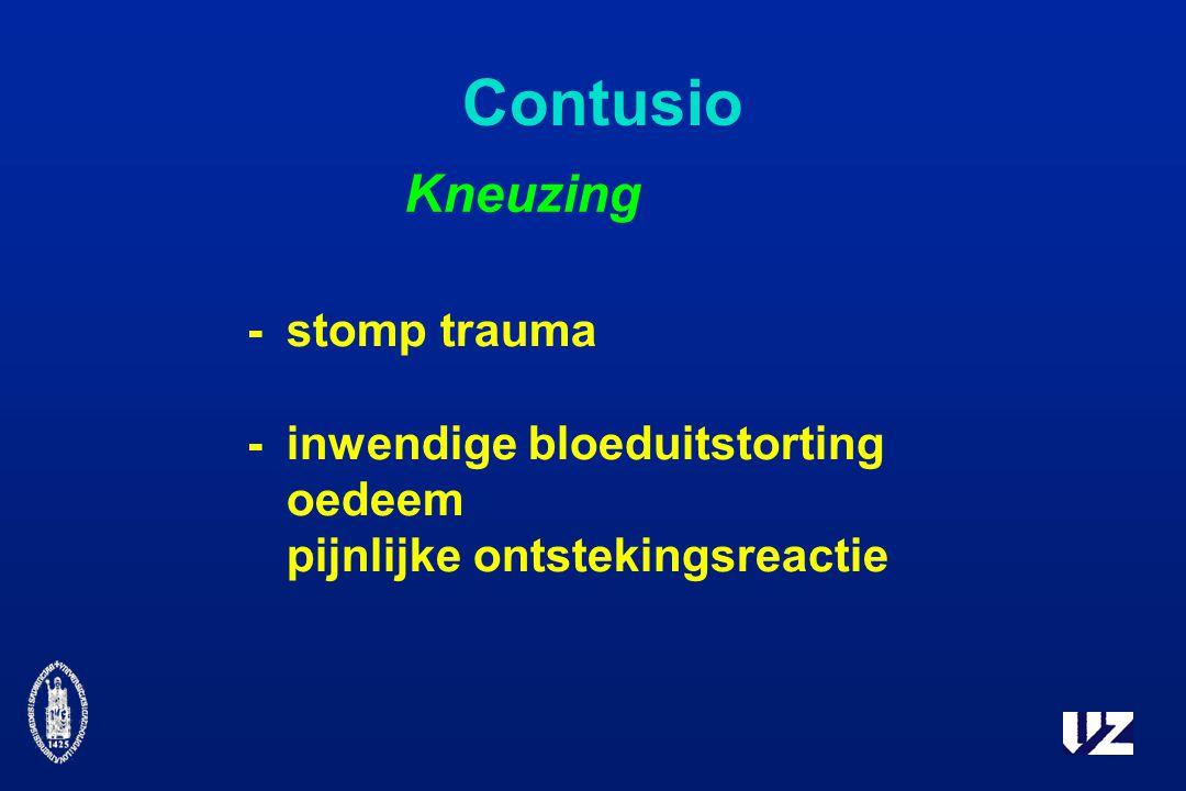Contusio -stomp trauma -inwendige bloeduitstorting oedeem pijnlijke ontstekingsreactie Kneuzing