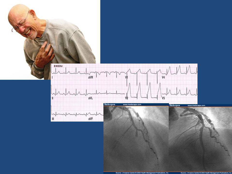Location of infarct combinations aVR V1 V4 I II III LATERAL INFERIOR ANT POST ANT SEPTAL ANT LAT aVL aVF V2 V3 V5 V6