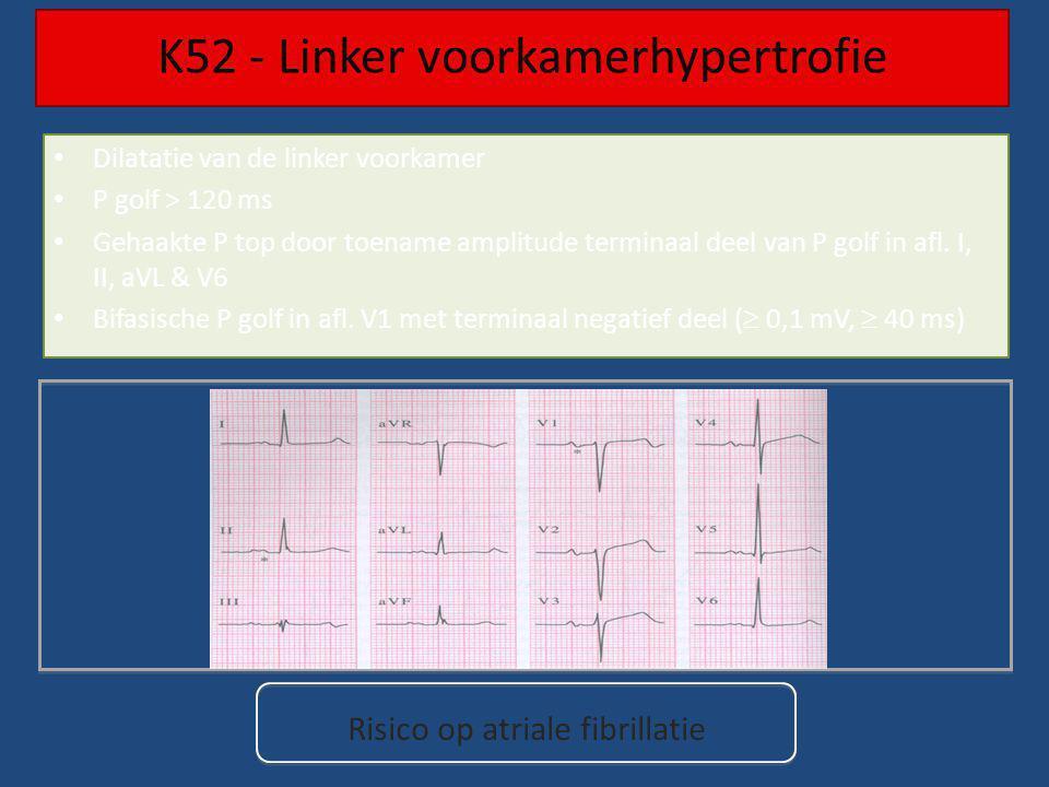 Dilatatie van de linker voorkamer P golf > 120 ms Gehaakte P top door toename amplitude terminaal deel van P golf in afl. I, II, aVL & V6 Bifasische P