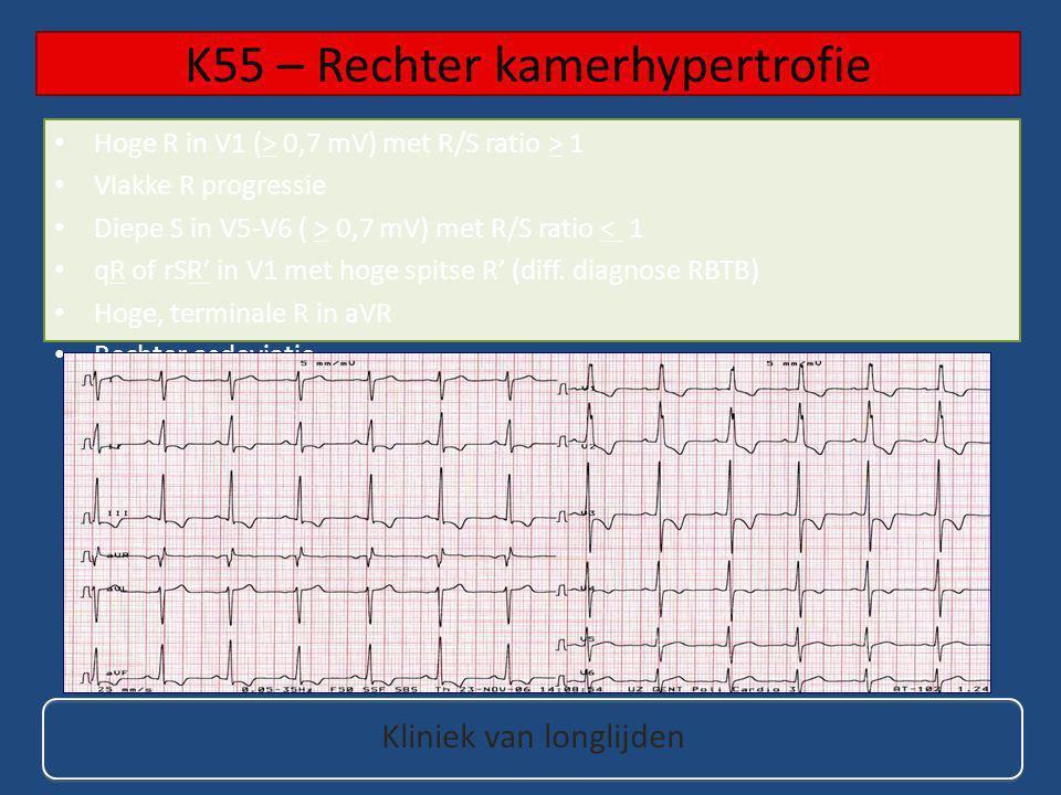 Hoge R in V1 (> 0,7 mV) met R/S ratio > 1 Vlakke R progressie Diepe S in V5-V6 ( > 0,7 mV) met R/S ratio < 1 qR of rSR' in V1 met hoge spitse R' (diff