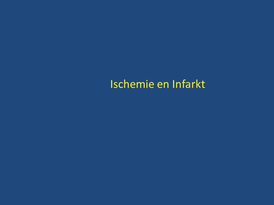 Ischemie en Infarkt