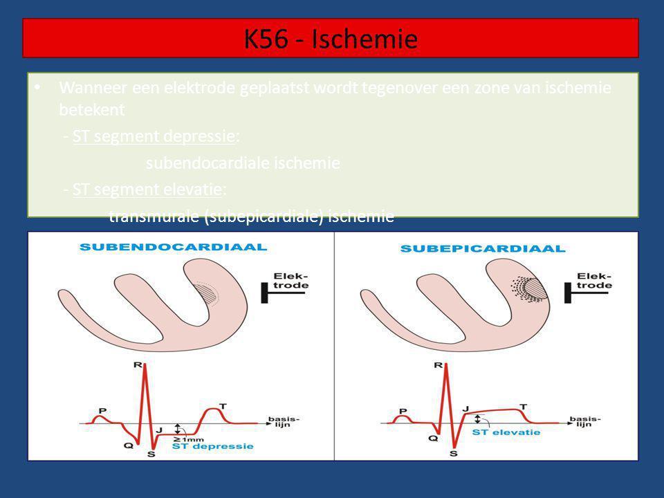 K56 - Ischemie Wanneer een elektrode geplaatst wordt tegenover een zone van ischemie betekent - ST segment depressie: subendocardiale ischemie - ST se