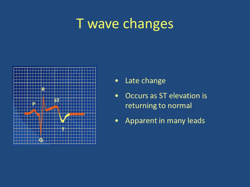 T wave changes R P Q T ST Late change Occurs as ST elevation is returning to normal Apparent in many leads