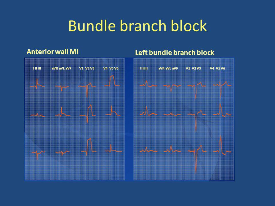 Bundle branch block I II III aVR aVL aVFV1 V2 V3V4 V5 V6 I II III aVR aVL aVFV1 V2 V3V4 V5 V6 Anterior wall MI Left bundle branch block