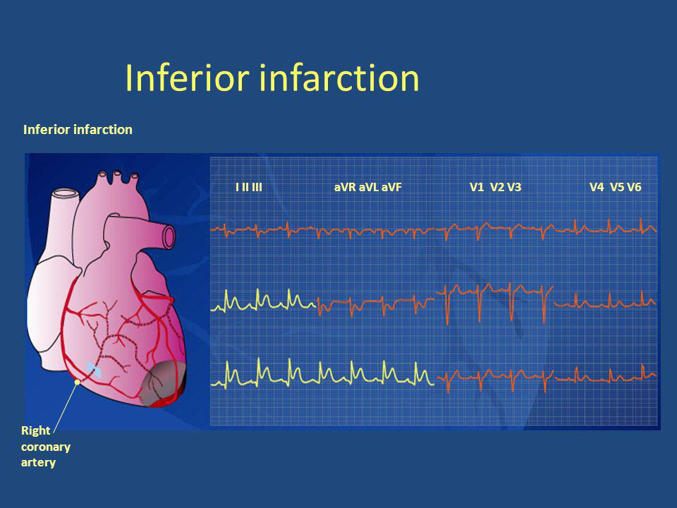 Inferior infarction I II III aVR aVL aVFV1 V2 V3V4 V5 V6 Right coronary artery