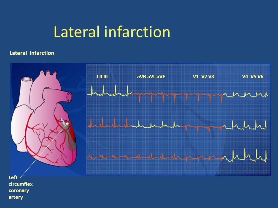 Lateral infarction I II III aVR aVL aVFV1 V2 V3V4 V5 V6 Left circumflex coronary artery