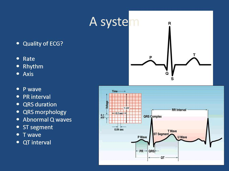 A system Quality of ECG.