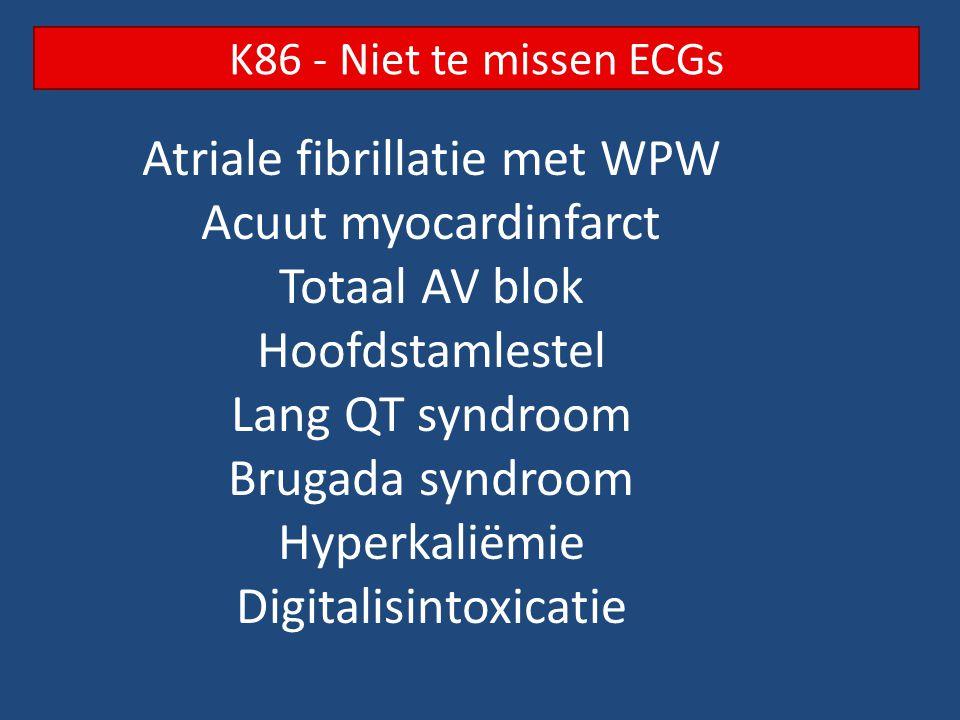 Atriale fibrillatie met WPW Acuut myocardinfarct Totaal AV blok Hoofdstamlestel Lang QT syndroom Brugada syndroom Hyperkaliëmie Digitalisintoxicatie K