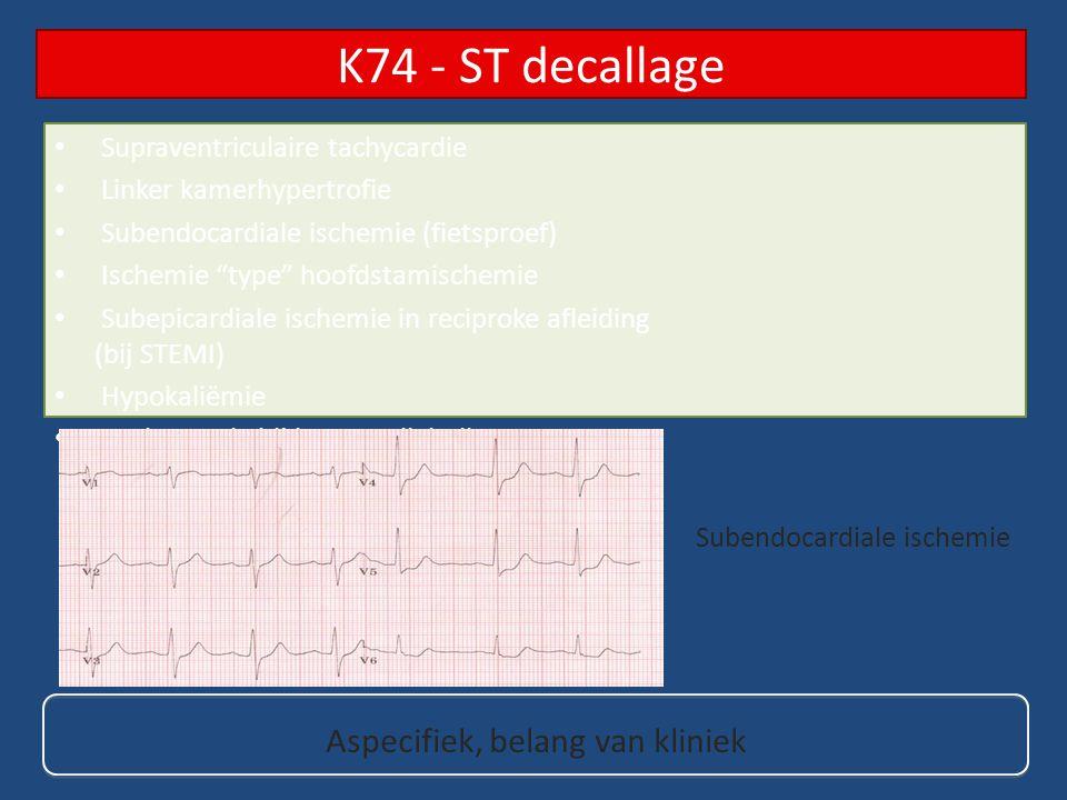 "Supraventriculaire tachycardie Linker kamerhypertrofie Subendocardiale ischemie (fietsproef) Ischemie ""type"" hoofdstamischemie Subepicardiale ischemie"