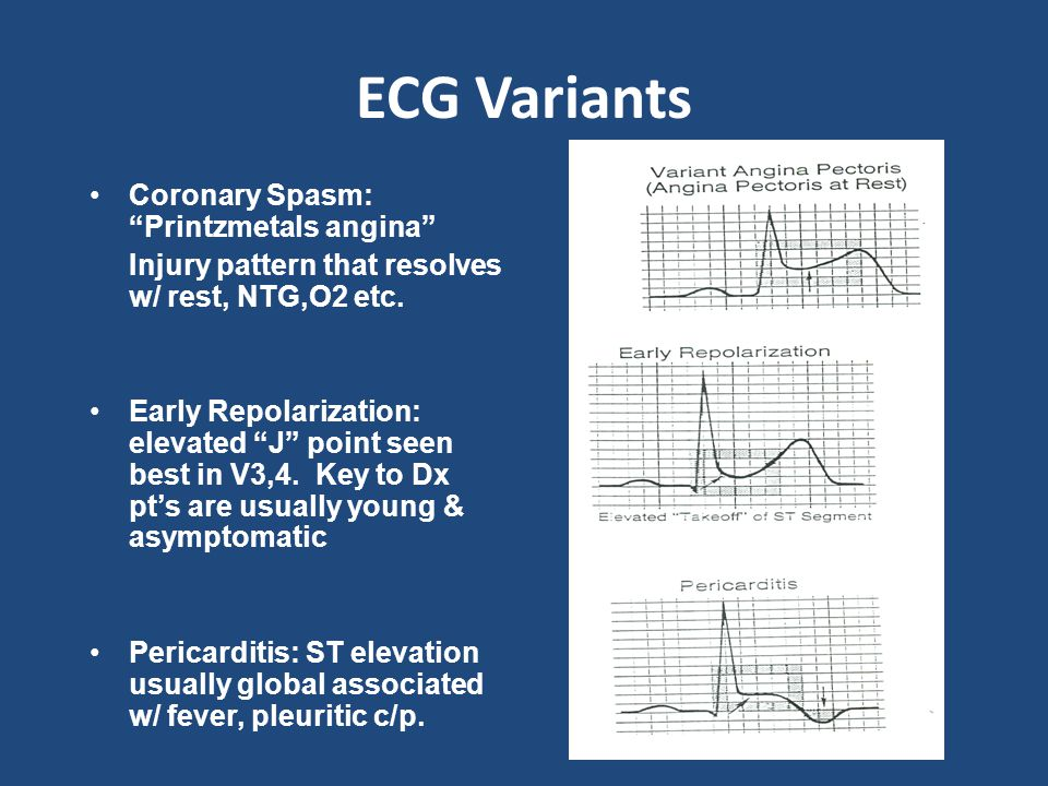 ECG Variants Coronary Spasm: Printzmetals angina Injury pattern that resolves w/ rest, NTG,O2 etc.