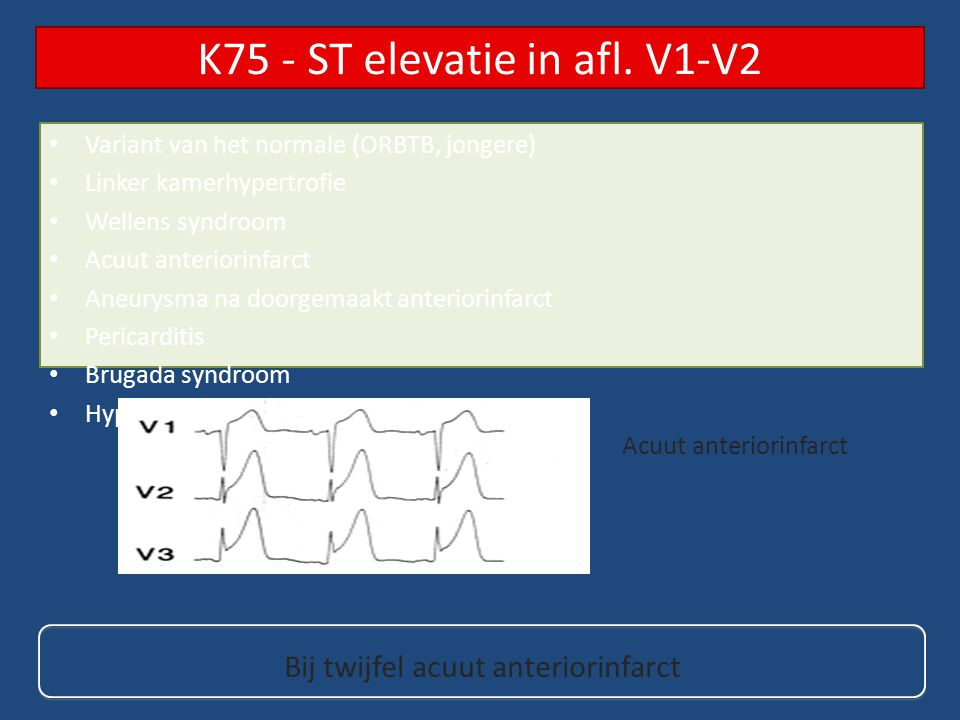 K75 - ST elevatie in afl.