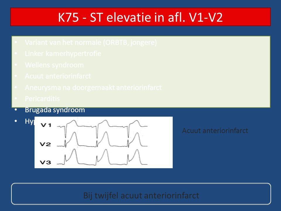 Linker kamerhypertrofie Acuut inferiorinfarct Acuut anteriorinfarct Aneurysma na doorgemaakt inferiorinfarct Pericarditis (concaaf) Hyperkaliëmie K76 - ST elevatie in afl.