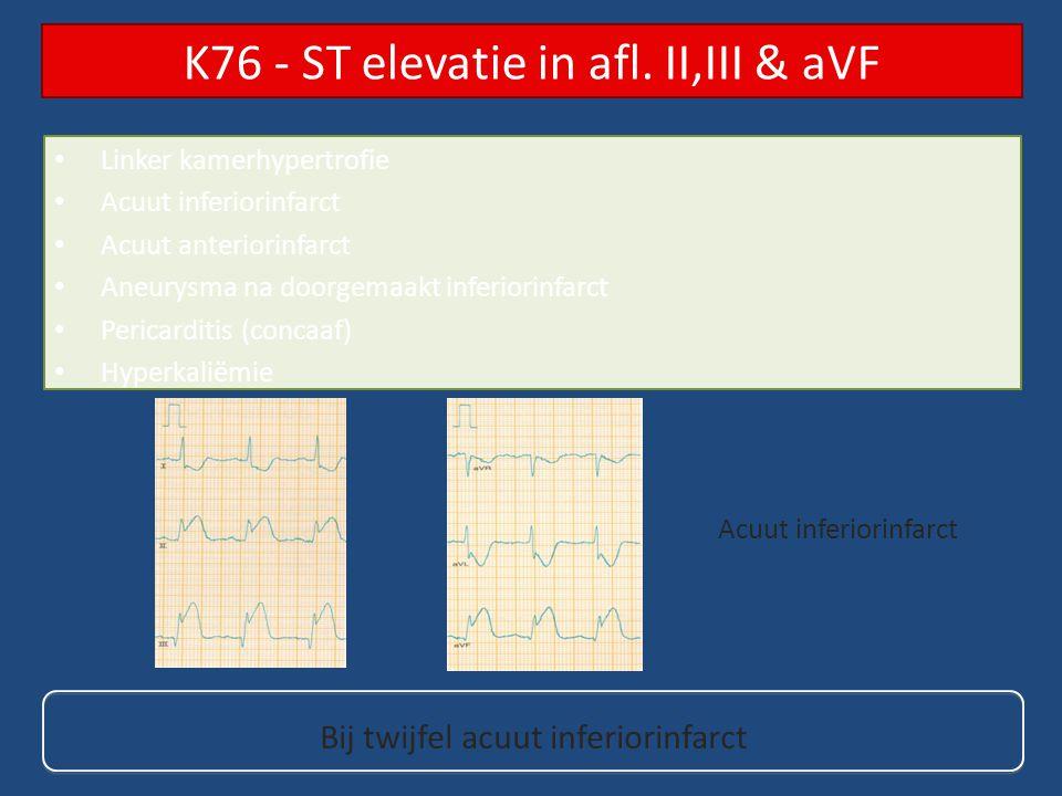 Linker kamerhypertrofie Acuut inferiorinfarct Acuut anteriorinfarct Aneurysma na doorgemaakt inferiorinfarct Pericarditis (concaaf) Hyperkaliëmie K76