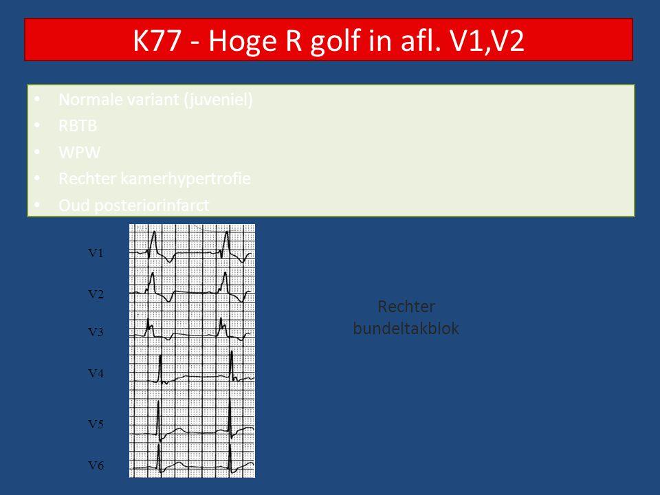 Normale variant Te hoge plaatsing elektrode LBTB WPW Oud anteriorinfarct RV apex pacing K78 – QS golf in afl.