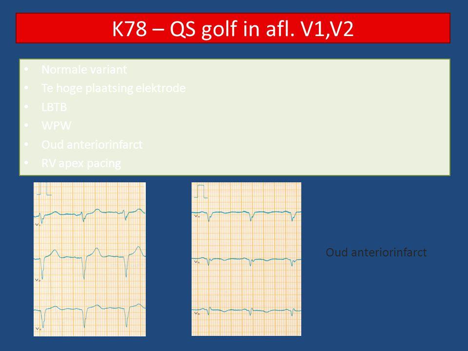 Normale variant Te hoge plaatsing elektrode LBTB WPW Oud anteriorinfarct RV apex pacing K78 – QS golf in afl. V1,V2 Oud anteriorinfarct