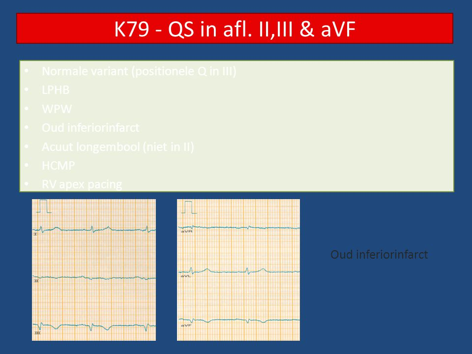 Normale variant (positionele Q in III) LPHB WPW Oud inferiorinfarct Acuut longembool (niet in II) HCMP RV apex pacing K79 - QS in afl.