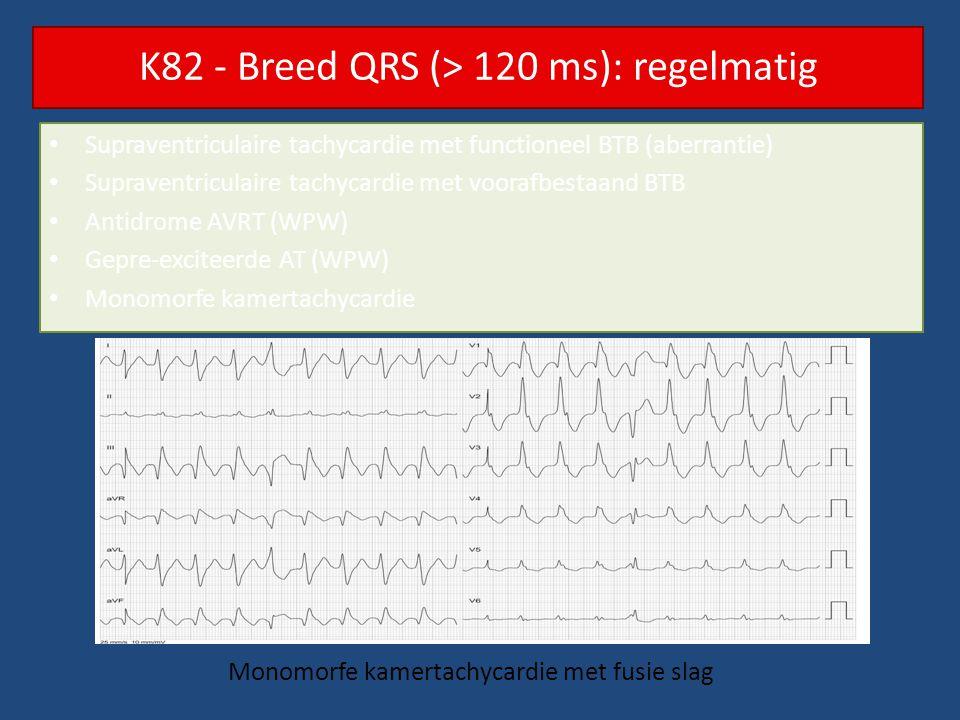 Atriale fibrillatie met voorafbestaand BTB Atriale fibrillatie met functioneel BTB (aberrantie) Atriale fibrillatie met pre-excitatie (FBI) Niet onderhouden of polymorfe kamertachycardie K83 - Breed QRS (> 120 ms): onregelmatig Bij structureel hartlijden: kamertachycardie