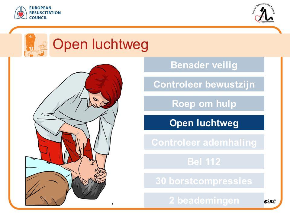Open luchtweg Approach safely Benader veilig Controleer bewustzijn Roep om hulp Open luchtweg Controleer ademhaling Bel 112 30 borstcompressies 2 bead