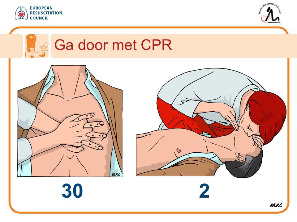 Ga door met CPR 30 2