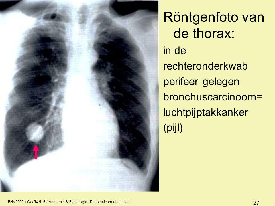 FHV2009 / Cxx54 5+6 / Anatomie & Fysiologie - Respiratie en digestivus 27 Röntgenfoto van de thorax: in de rechteronderkwab perifeer gelegen bronchusc